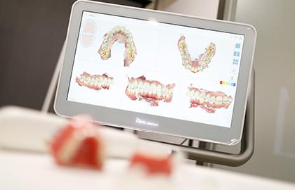 精密・正確な歯型を製作